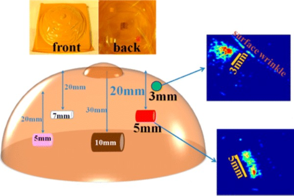 'Electronic skin' detects breast cancer